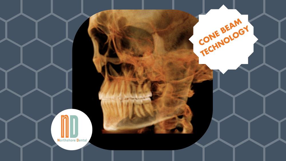 wisdom teeth extraction northshore