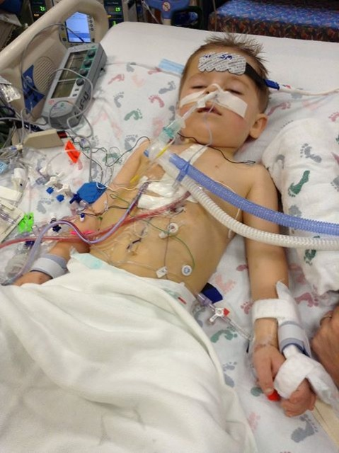 Hunter during one of his open heart surgeries.