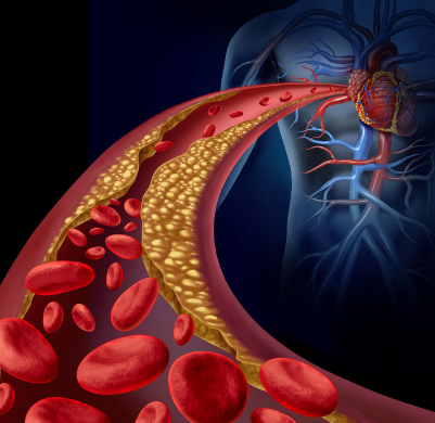 illustration of plaque blocked artery leading to heart