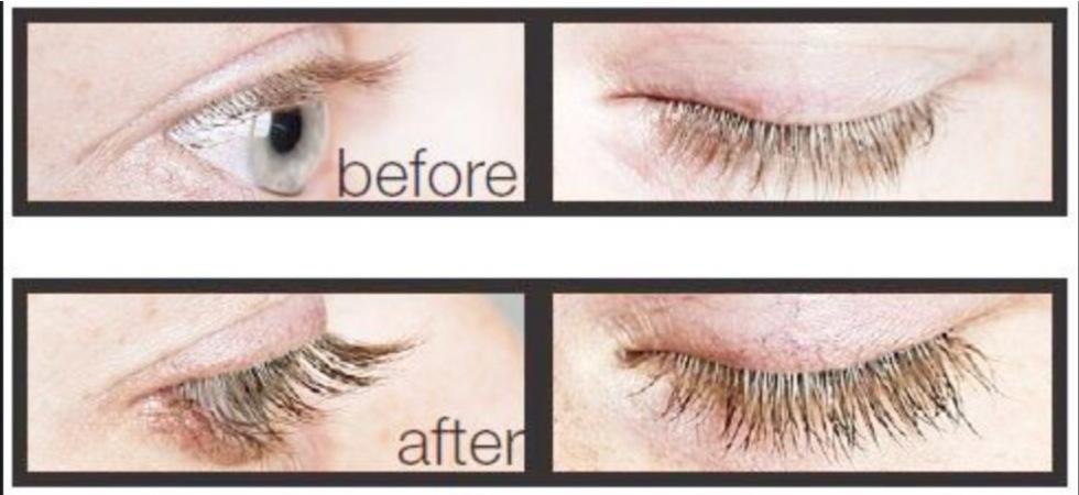 Før og etter bruk av Maxeylash