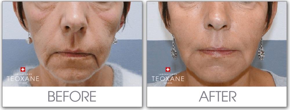 Volumbehandling og ansiktskonturering med TEOSYAL Ultimate