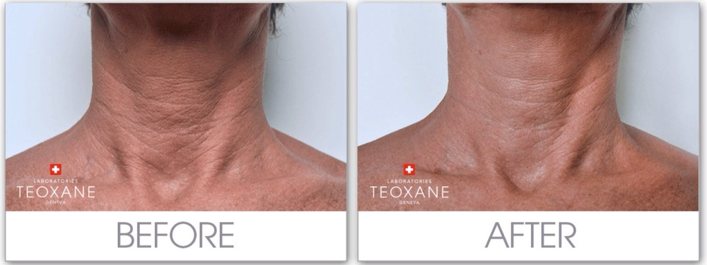 Behandling av hals og brystparti med TEOSYAL Redensity I