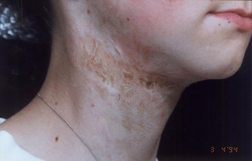 Arr og pigmentering før og etter Environ produkter og behandlinger
