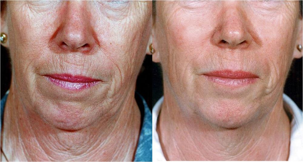 Hudforbedring før og etter Environ hjemmeprodukter og behandlinger