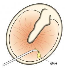 G3 - Myringotomy
