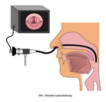 paediatric endoscopy diagram