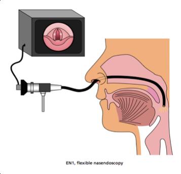 Endoscopy Image