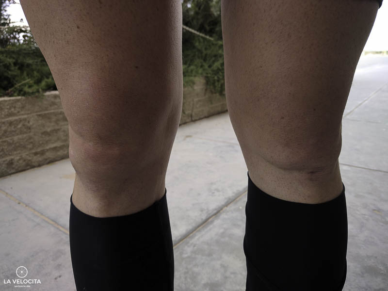 I'm pretty sure I used to have knee caps.