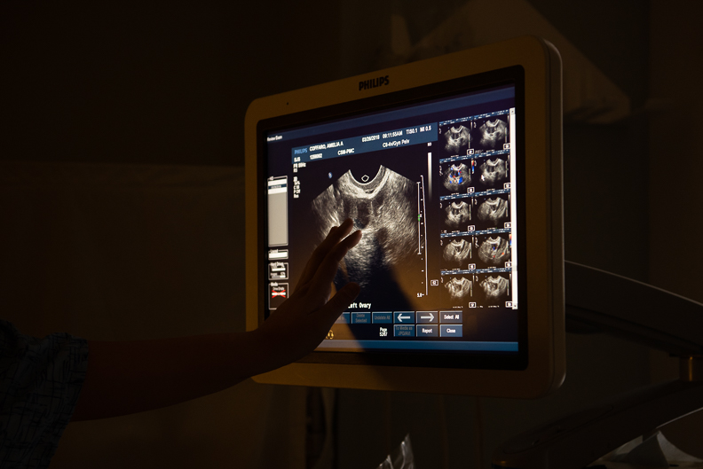 Self portrait during routine screening pelvic ultrasound, March 2018.