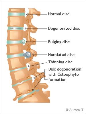 spine-disc-diseases-nyc.jpg
