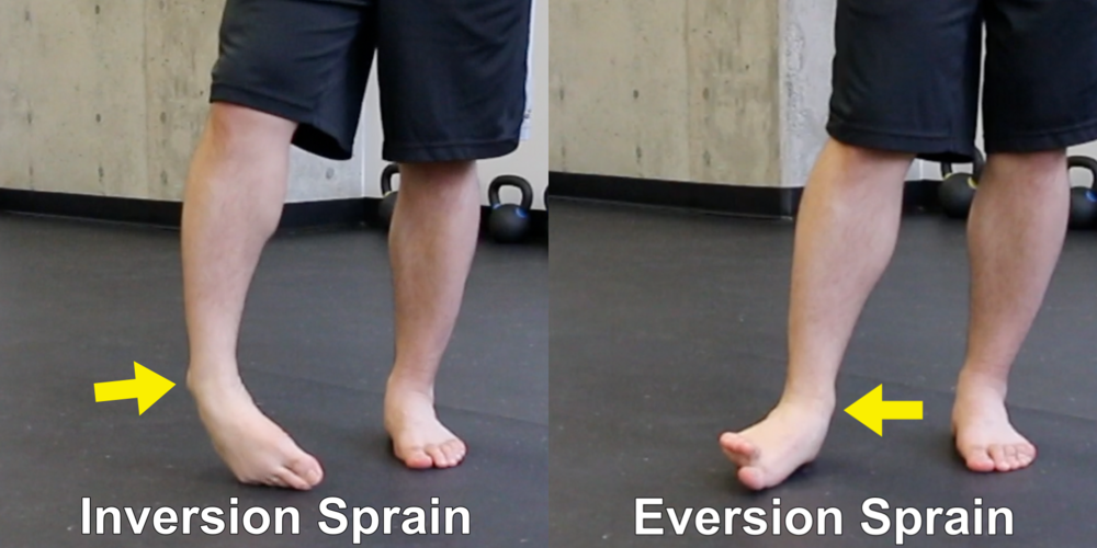 Inversion and Eversion Ankle Sprain