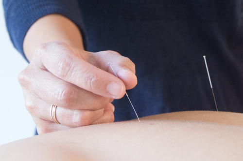 acupuncture in seattle image 1