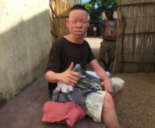 Donations of clothes to this disabled albino boy. His mum has passed and his dad is dying of HIV