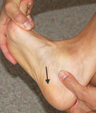 Typical location of Plantar Fasciitis pain