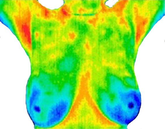 Thermography Event