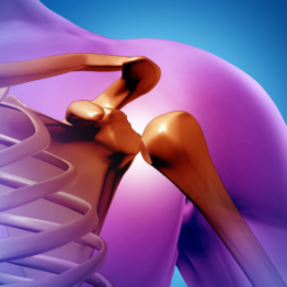 shoulder-surgery.png