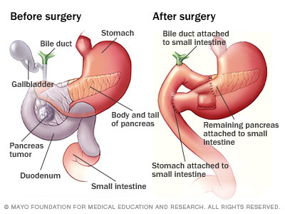 A much less bloody representation of the before and after of the Whipple surgery