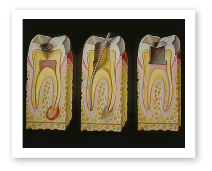 Dr. Koczarski provides pain-free root canals when necessary.