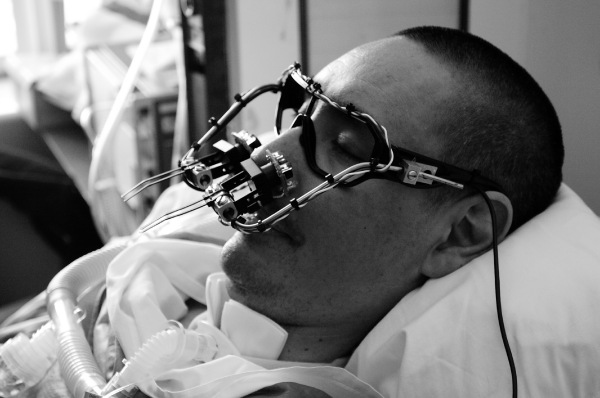 "Eyewriter     ""Art is a tool of empowerment and social change, and I consider myself blessed to be able to create and use my work to promote health reform, bring awareness about ALS and help others."" writes Tony Quan, tag name Tempt One or Tempt1, an influential american griffiti artist known for infusing Los Angeles' indigenous cholo writing culture ith New York stylewriting in his art.  After being diagnosed with ALS, or amyotrophic lateral sclerosis (a progressive neurodegenerative disease that affects nerve cells in the brain and the spinal cord), artists and engineers from Free Art & Technology Lab, Graffiti Research Lab set out to create an affordable eyetracking system using openFrameworks and a set of glasses and cameras.  By detecting and tracking the position of the pupil from a video feed and then performing a calibration sequence, the tracked coordinates are then transposed onto a canvas through and manipulated through different styles and fonts.  The result is staggering.  And promising (see generated artwork at  http://eyewriter.org/images/ ).  With ongoing feedback and support from developers and graffiti/urban projection artists, eyewriter aims to create a commercial-strength product for ALS patients to continue creating art commensurate with their imagination."