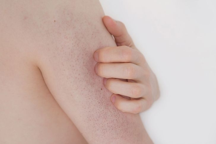 "Nicknamed ""chicken skin,"" the symptoms of keratosis pilaris can be soothed by skincare treatments. However, only diet can heal it."