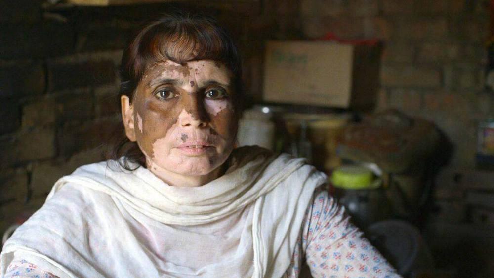 Una mujer con problemas dérmicos causados por los químicos en el agua de su comunidad. ¿Aún te parece barata la ropa de marcas como H&M?