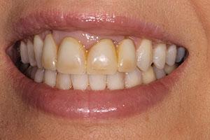 Figure 21.Pre-op polymethyl methacrylate temporary crowns, teeth Nos. 8 and 9.