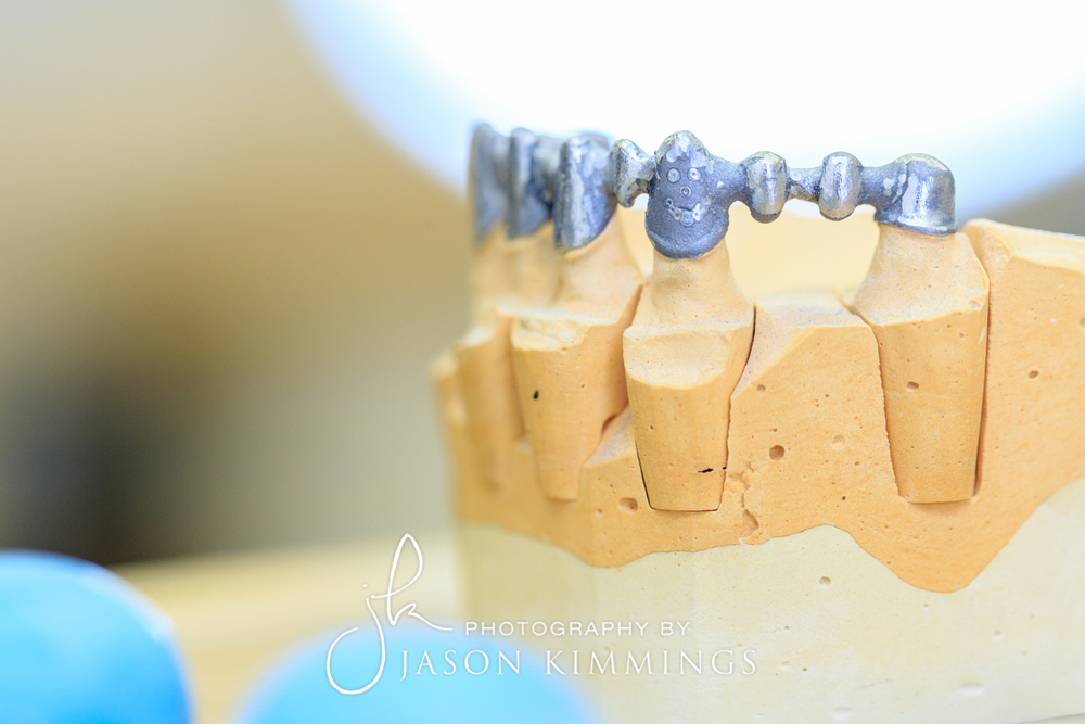 Dental-photography-glasgow-edinburgh-scotland-4.jpg