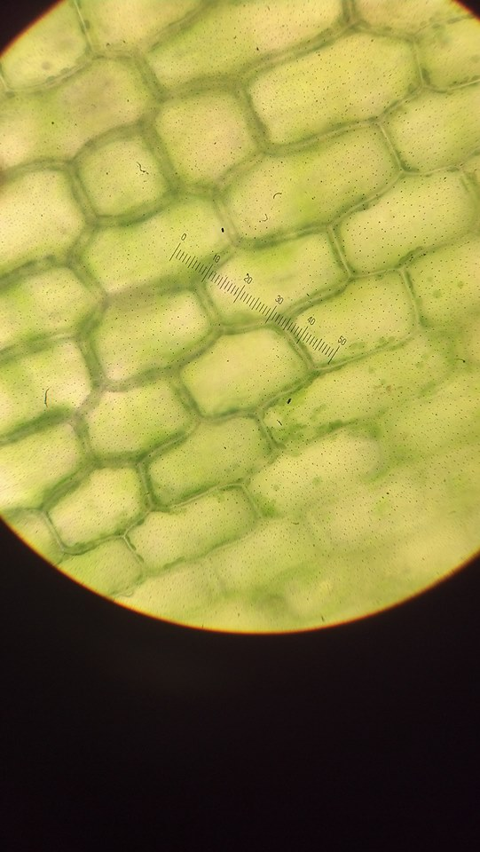 Elodea  cells in distilled water