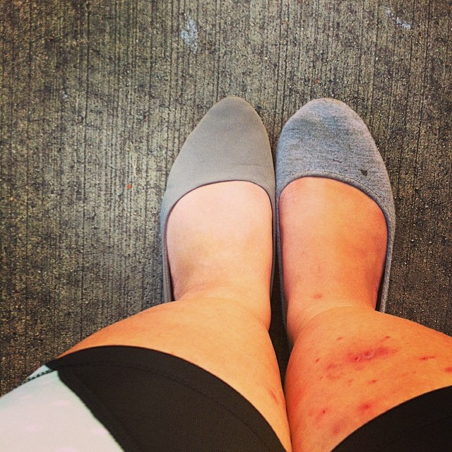 I relied on my mismatched shoes to distract from the red, scary mess that was my right leg.