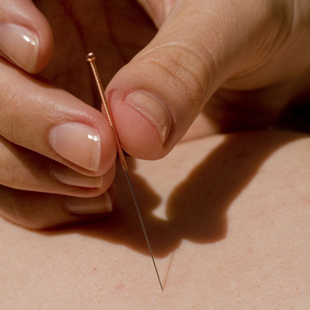 Needle being inserted in an acupuncture point. Photo by Angelika Apell/iStock / Getty Images