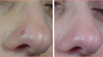 Angioma naso - risultato dopo 1 seduta