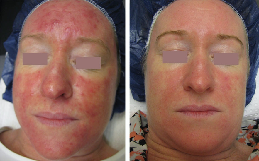 ROSACEA (REDNESS)