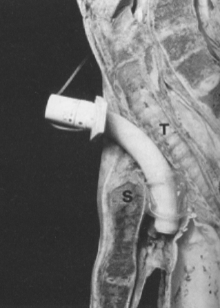 trouble with trachs recannulating the stenosed trach