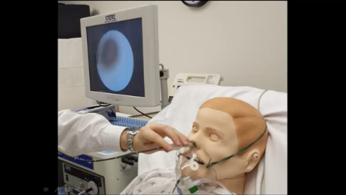 Awake Flexible Fiberoptic Intubation