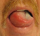 """Angioedema2013"" by James Heilman, MD - Own work. Licensed under Creative Commons Attribution-Share Alike 3.0 via Wikimedia Commons - http://commons.wikimedia.org/wiki/File:Angioedema2013.JPG#mediaviewer/File:Angioedema2013.JPG"