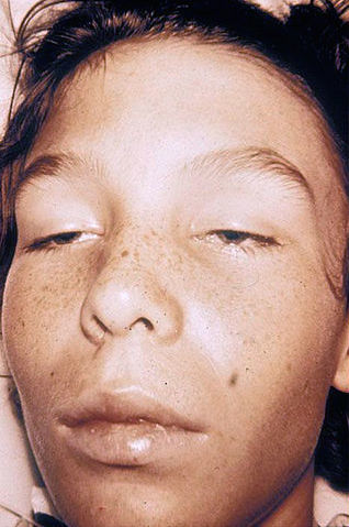 Example of bilateral ptosis - By Herbert L. Fred, MD and Hendrik A. van Dijk (http://cnx.org/content/m14960/latest/) [CC-BY-2.0 (http://creativecommons.org/licenses/by/2.0)], via Wikimedia Commons