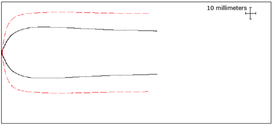 Note: The dashed red line represents a normal TEG and the black line is your patient's read out