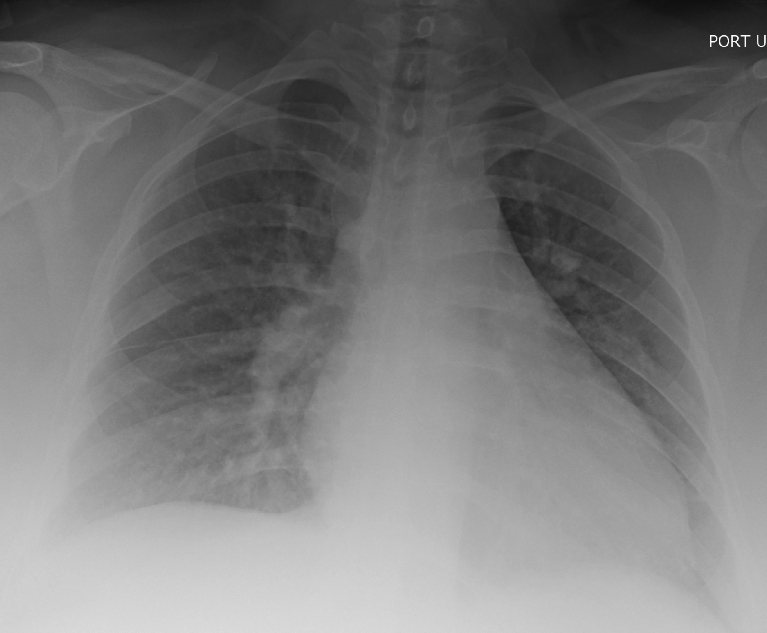 CXR with bilateral infiltrates concerning for pulmonary edema