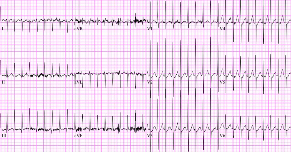 This EKG shows a narrow complex, regular tachycardia consistent with supraventricular tachycardia