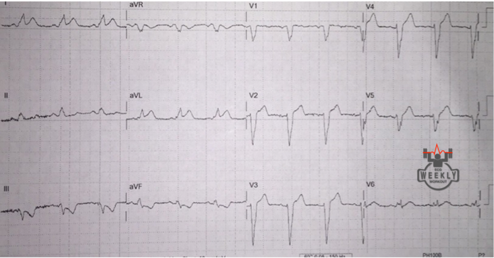 Concordant ST-elevation in I and aVL, concordant ST-depression in III and aVF https://ecgweekly.com/2015/06/amal-mattus-ecg-case-of-the-week-june-1-2015/