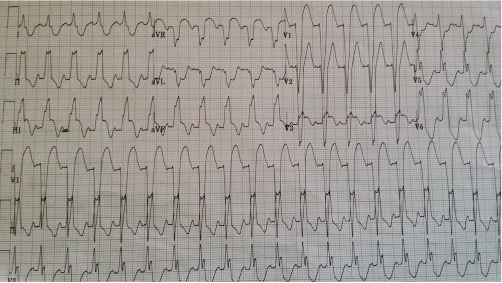 Now obvious sgarbossa positive concordant ST-elevation in III and aVF, and also concordant ST-depression in aVL. http://hqmeded-ecg.blogspot.com/2014/10/some-cardiologists-still-are-not.html
