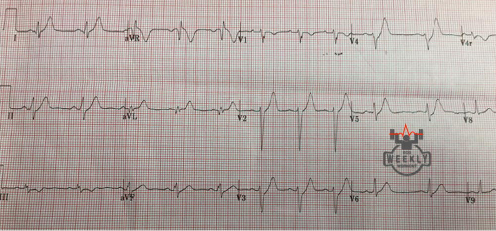 Courtesy Dr. Ari Kestler (San Francisco). de Winter T-waves in V3, V4, and V5, 100% LAD occlusion. https://ecgweekly.com/2015/06/amal-mattus-ecg-case-of-the-week-june-29-2015/