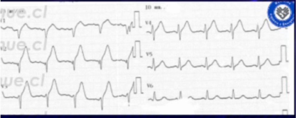 Initial Repeat ECG showing loss of pre-cordial R wave progression. Courtesy Dr. Nicolas Pineda (Chile) https://ecgweekly.com/2015/06/amal-mattus-ecg-case-of-the-week-june-29-2015/