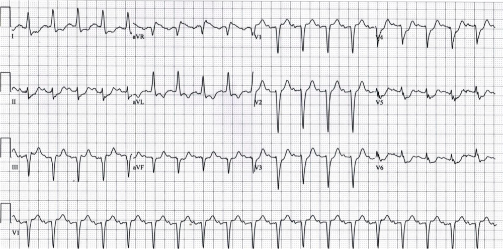 ST-depression I, aVL, II, aVF, V3-V6, and ST-elevation in aVR. 100% left main occlusion. http://lifeinthefastlane.com/ecg-library/lmca/ Example 2