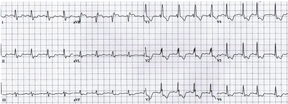 Interpretation: ST-depression in I, II, aVF, V2-V6 (V2-V3 ST-depression is normal in a RBBB).  Proposed cause: Diffuse sub-endocardial ischemia due to acute blood loss causing demand ischemia (type II NSTEMI).  http://lifeinthefastlane.com/ecg-library/lmca/ Example 8