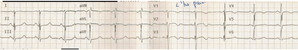 Type A Wellen's waves in V2-V3. http://lifeinthefastlane.com/ecg-library/wellens-syndrome/ Example 5f