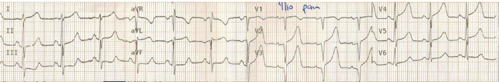 Anterolateral STEMI with reciprocal inferior depressions. http://lifeinthefastlane.com/ecg-library/wellens-syndrome/ Example 5a