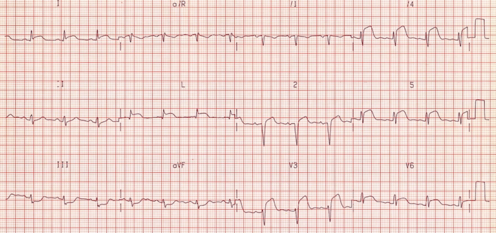Anterolateral STEMI, note reciprocal depressions in III and aVF, Culprit artery LAD. http://lifeinthefastlane.com/ecg-library/anterior-stemi/