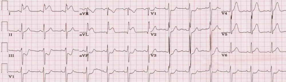 Lateral STEMI, ST-elevation I, aVL, also V5, V6, ST-depression II, III, aVF, and V1, V2, V3 (posterior extension?). http://cdn.lifeinthefastlane.com/wp-content/uploads/2011/10/lateral-MI-1st-diagonal.jpg