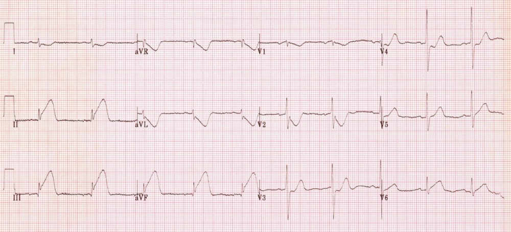 Inferior STEMI, ST-elevation in II, III, aVF, ST-depression in I, aVL. http://cdn.lifeinthefastlane.com/wp-content/uploads/2011/10/inf3.jpg